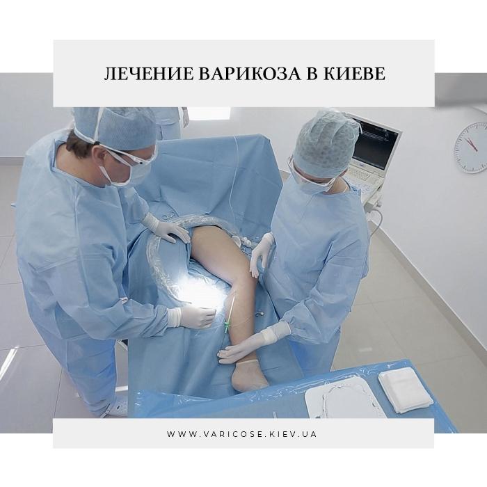 Лечение варикоза в Киеве