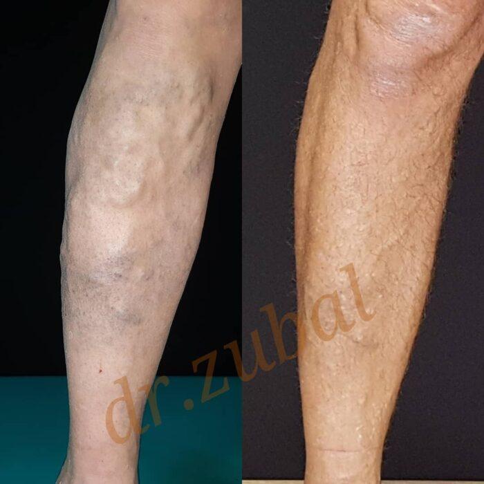 Лазерное удаление вен + склеротерапия