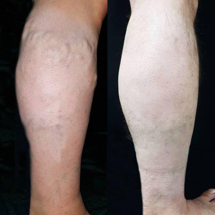 Лазерное удаление вены + склеротерапия